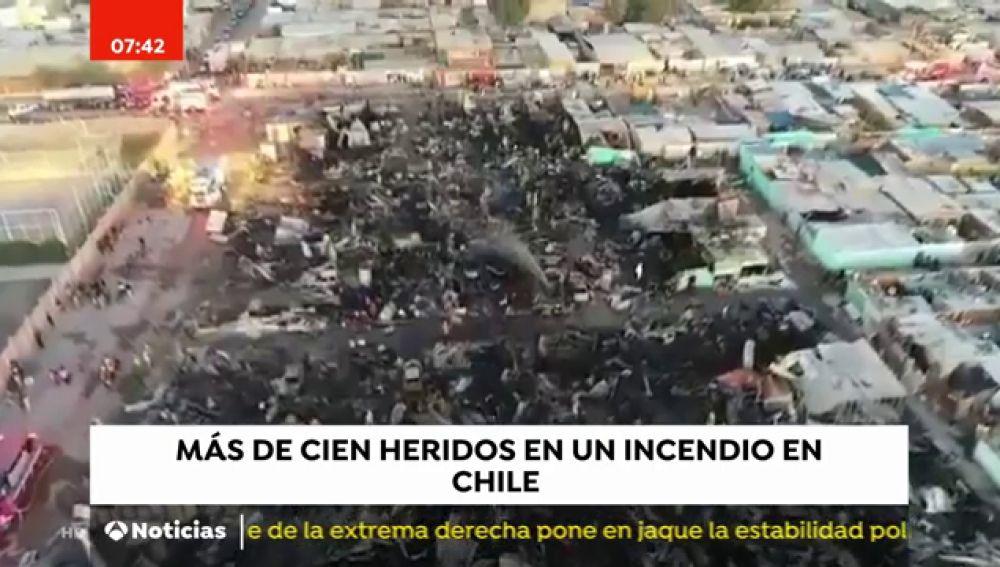 Más de cien heridos en un incendio en Chile
